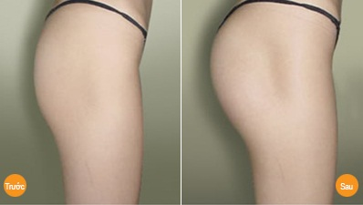 Phẫu thuật nâng mông nội soi thẩm mỹ